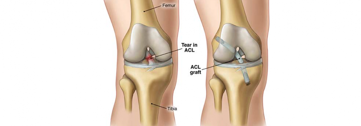 Knee-After-Medial-Patellofemoral-Ligament-Reconstruction