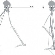 Dynamic-leg-length-asymmetry-during-gait-is-not-a-valid-method-for-estimating-mild-anatomic-leg-length-discrepancy